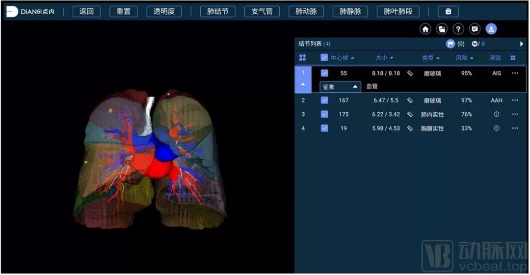 点内科技获数千万元A轮融资,专注AI肺癌全病程解决方案